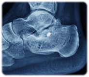 Calcaneus de rayon X Photos stock