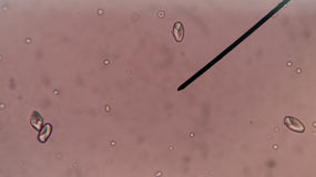 Calcium oxalate crystal in urine. Stock Photography