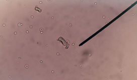 Calcium oxalate crystal in urine. Stock Photo
