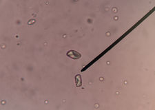 Calcium oxalate crystal in urine. Stock Image