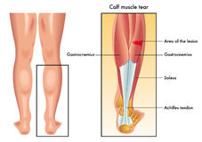 Calf muscle tear Stock Image