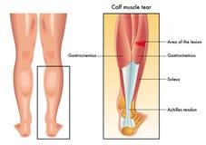 Calf muscle tear Stock Image