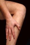 Calf pain Stock Image