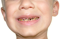 Calf's Teeth decay Toothache Royalty Free Stock Photos
