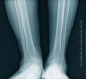 Calf  x-ray Stock Photos