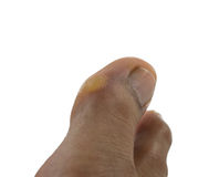 Callcus on toe of a man in white background. The position of the callus on side of toe Stock Photography
