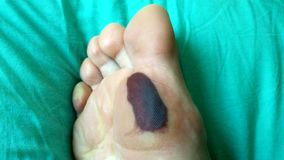Callus with bruise. Rubbed foot_2. Bruise callus resulting from intense friction of the foot with synthetic footwear fabrics_2 royalty free stock photography