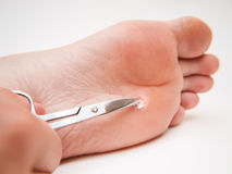 Callus under foot. Person with callus located under foot, treated with a pair of scissors royalty free stock photos