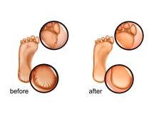 Calluses και ρωγμές των τακουνιών απεικόνιση αποθεμάτων