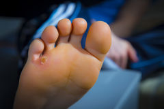 Calluses on foot Royalty Free Stock Photos