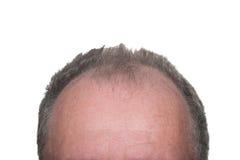 Calvície masculina do teste padrão Fotografia de Stock Royalty Free