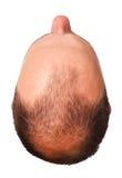 Calvicie masculina del modelo Foto de archivo
