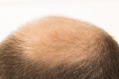 Calvicie prematura, hombre, 40s, fondo blanco Fotos de archivo