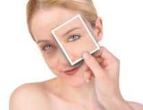 Cambio de imagen de la arruga del ojo de la belleza imagen de archivo