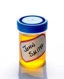 Campione di urina Fotografie Stock Libere da Diritti