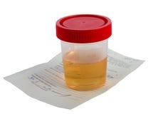Campione di urina Immagine Stock Libera da Diritti