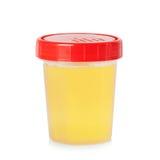 Campione di urina in contenitore fotografie stock