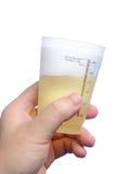 Campione di urina della tenuta della mano immagine stock