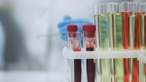 Campioni di sangue che stanno sulla tavola, test HIV, esemplari microbiologici fotografia stock