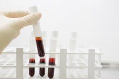 Campioni di sangue dell'esame Immagini Stock