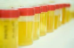 Campioni di urina Fotografia Stock Libera da Diritti