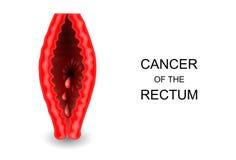 Cancer av ändtarmen vektor illustrationer