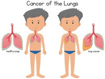Cancer av lungorna stock illustrationer