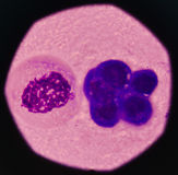 Cancer Cell in blood cells. Cancer Cell in blood cells human showing abnormal cells Royalty Free Stock Photo