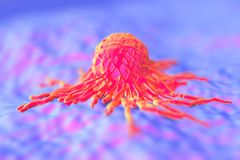 Cancer cell/ tumor Royalty Free Stock Photo