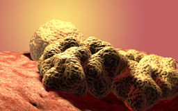 Cancer cell tumor, medical illustration Royalty Free Stock Image