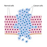 Cancer cells. In a growing tumor, eps8 Royalty Free Stock Image