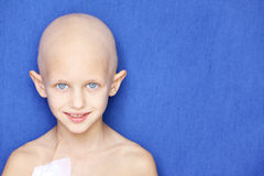 Cancer child portrait. Portrait of a caucasian child without hair due to chemotherapy treatment Royalty Free Stock Photos