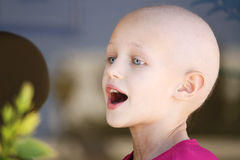 Cancer child portrait. Caucasian girl portrait of a bald head due to chemotherapy treatment having a conversation Stock Photography