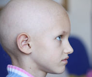 Cancer child profile. Profile of a beautiful girl suffering from cancer showing hair loss Stock Image