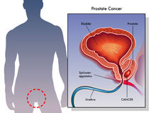 Cancer de la prostate Images libres de droits