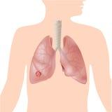 Cancer de poumon Image stock
