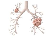 Cancer de poumon Images stock