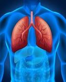 Cancer de poumon dans l'humain Images stock