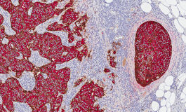 Cancer du sein affichant l'expression HER-2 photo stock