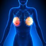 Cancer du sein - anatomie femelle - point culminant de tumeur illustration de vecteur