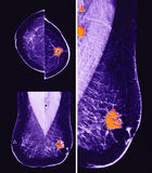 Cancer du sein métastatique, mammographie image stock