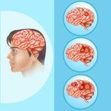 Cancer för diagramvisninghjärna i människa stock illustrationer