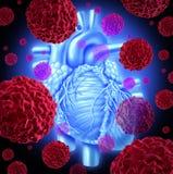 Cancer humain de coeur Photos stock
