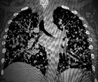 Cancer, lungs metastases. CT scan reconstruction. Stock Photography