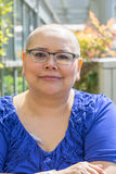 Cancer Patient Deals With Hair Loss Royalty Free Stock Image