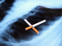 Cancer spot. Conceptual image about smoking issues and lung cancer stock image