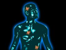 Cancer spread. Tumors marked in transparent human body stock illustration