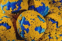 Cancercell i Oncologybegrepp för äggstocks- cysta av att mutera äggcellen för cancer för cellShape förskjutning vektor illustrationer