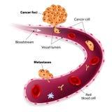 Cancerceller, cancerfokusar och Metastases royaltyfri illustrationer