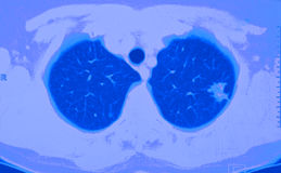 cancerct-lung Arkivfoto